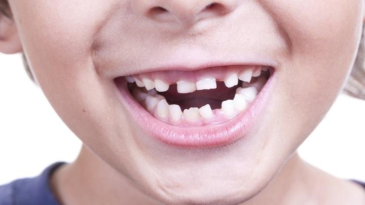 caida dientes1